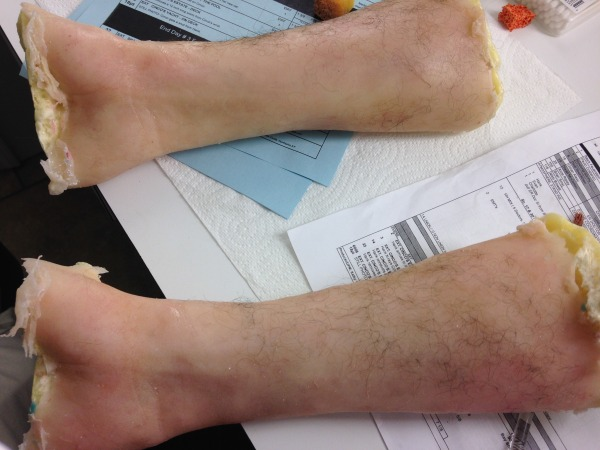 Severed Limbs from Elementary