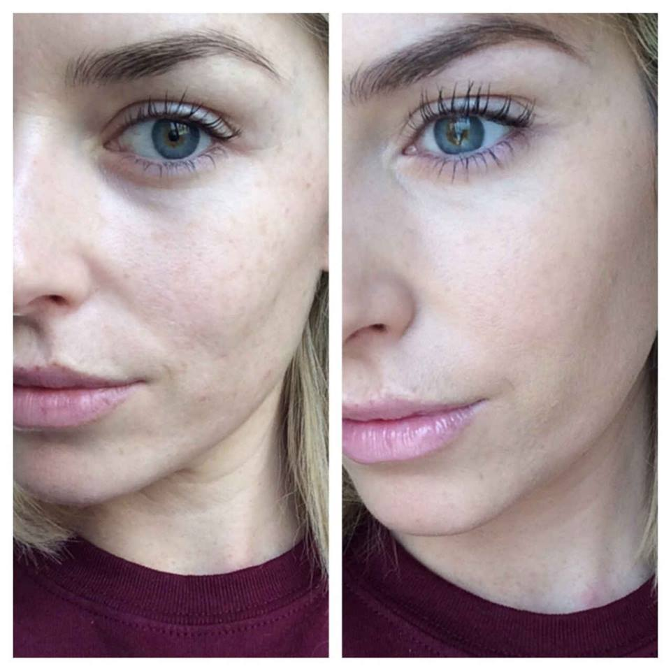 AC_Beforeandafter_Pippa O'27Connor