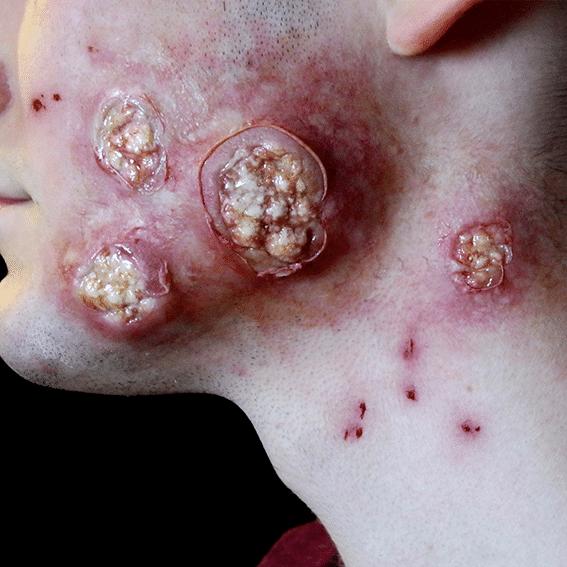 Disease1