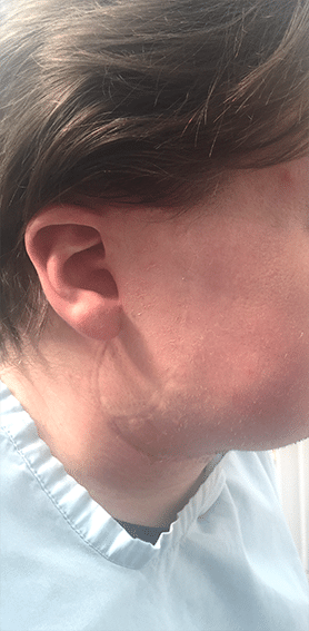 Andrew's scar with camouflage make-up