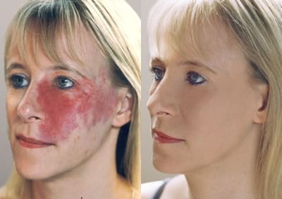 Port Wine Stain Before & After Camouflage. Copyright BASC (British Association of Skin Camouflage)