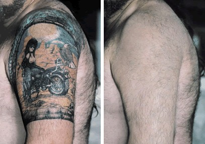 Tattoo Before & After Skin Camouflage  Image Copyright BASC