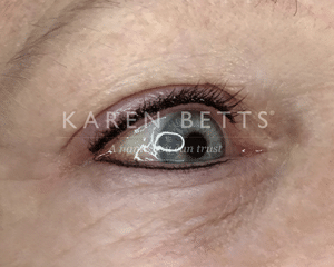 lashEnhance_eyes_after